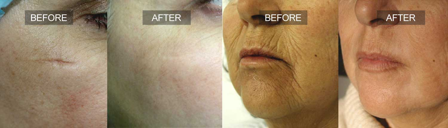 Skin Resurfacing Feature Image