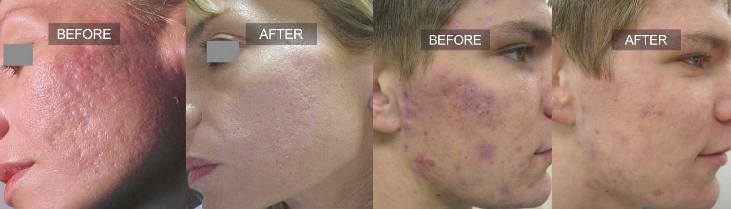 Active Acne Treatment Feature Image