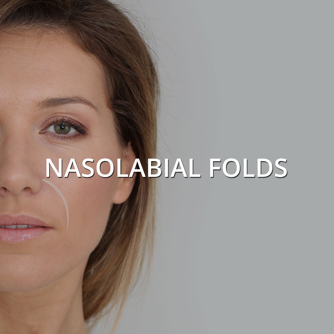 Nasolabial Folds
