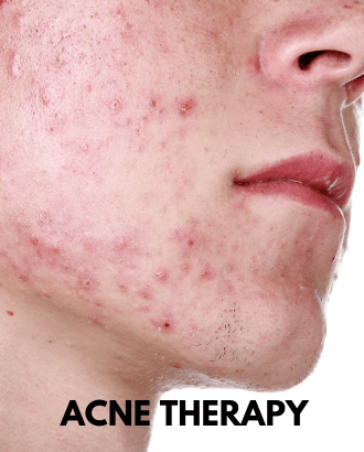 Active Acne Therapy